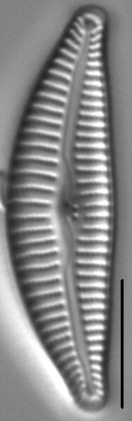 Cymbella Affiniformis5