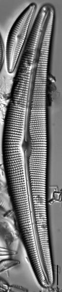 Cymbella Lanceolata5