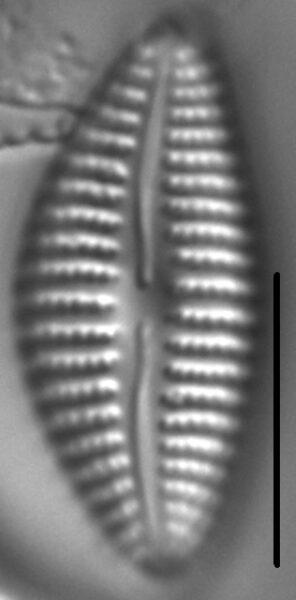 Cymbella Neoleptoceros7