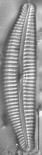 Cymbella Rumrichae4