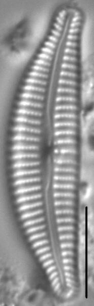 Cymbella Rumrichae6