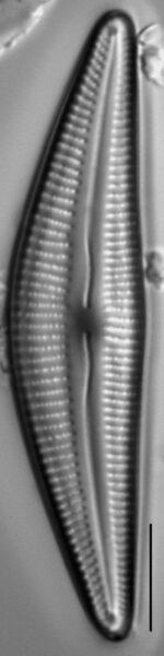Cymbella stigmaphora LM1