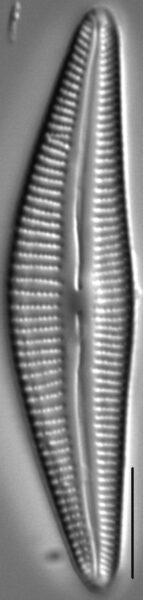 Cymbella stigmaphora LM3