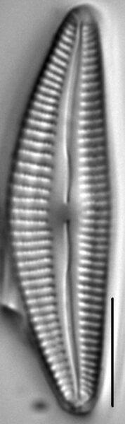 Cymbella stigmaphora LM5