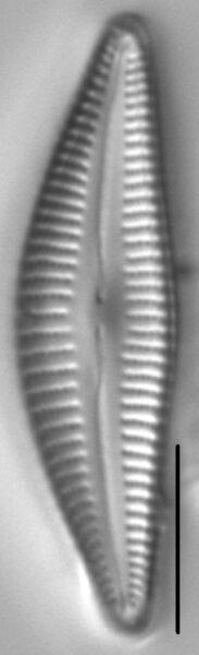 Cymbella stigmaphora LM6