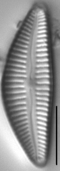 Cymbella stigmaphora LM7