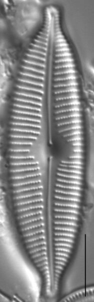 Cymbopleura anglica LM3
