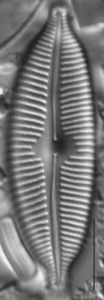 Cymbopleura anglica LM6