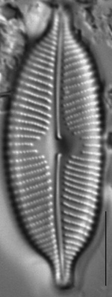 Cymbopleura anglica LM7