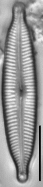 Cymbopleura angustata LM6