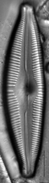 Cymbopleura edlundii LM5