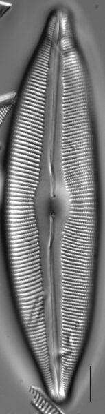 Cymbopleura heinii LM5