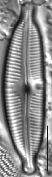 Cymbopleura naviculiformis LM2