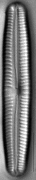 Cymbopleura oblongata LM1