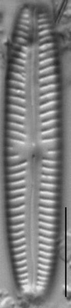 Cymbopleura oblongata LM5