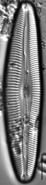 Cymbopleura anglica LM5