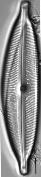 Cymbopleura subcuspidata LM1