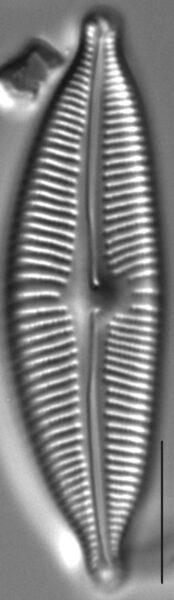 Cymbopleura sublanceolata LM3