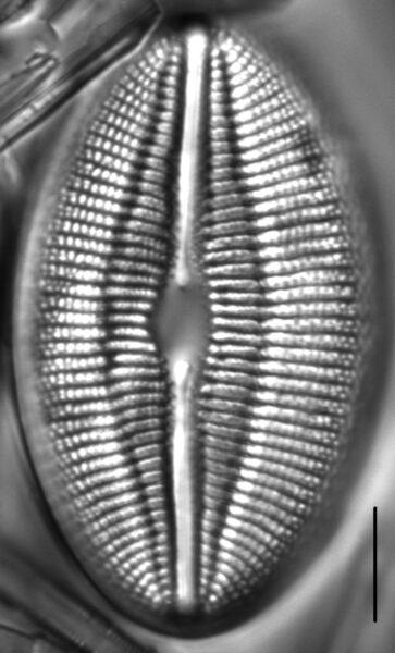 Diploneis finnica LM5
