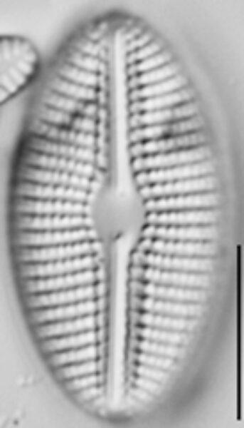 Diploneis calcilacustris LM5