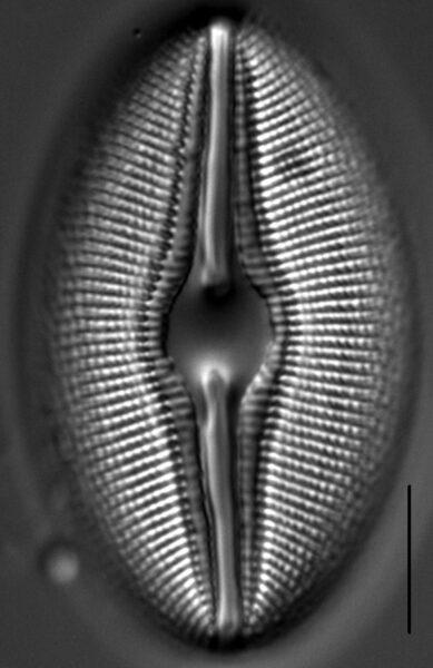 Diploneis Ovalis 3