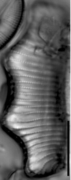 Eunotia montuosa LM7