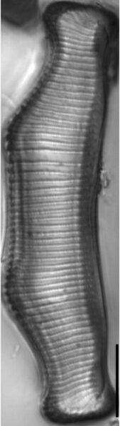 Eunotia montuosa LM2