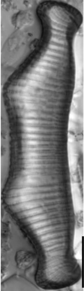 Eunotia montuosa LM3