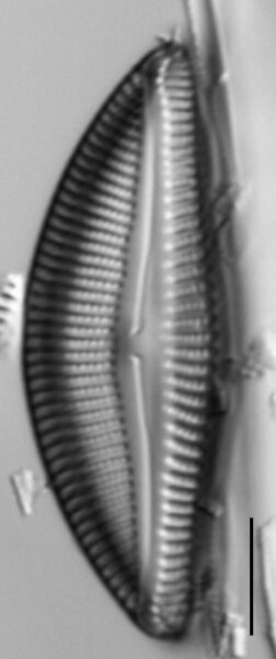 Encyonema yellowstonianum LM1