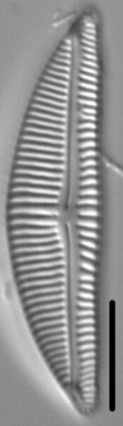 Encyonema Silesiacum LM3