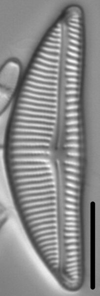 Encyonema Silesiacum LM5