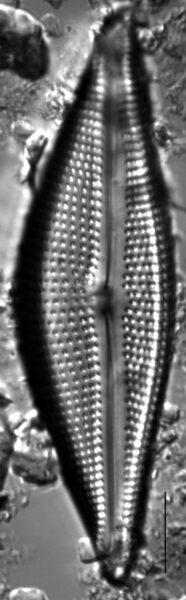 Encyonema triangulum LM1
