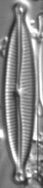 Encyonopsis Czarneckii 6