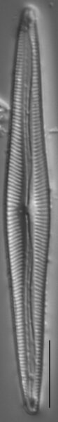 Encyonopsis Subspicula2