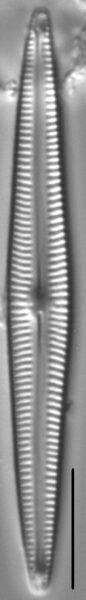 Encyonopsis Subspicula5