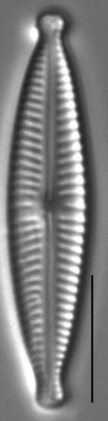 Encyonopsisaequalis 1