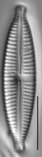 Encyonopsisaequalis 4