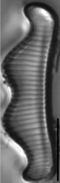 Eunotia subherkiniensis LM1