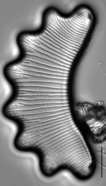 Eunotia diadema LM1