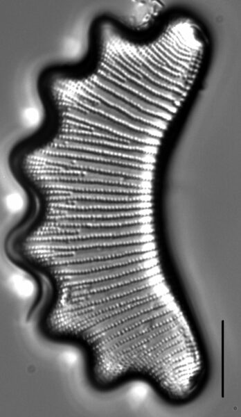 Eunotia diadema LM3