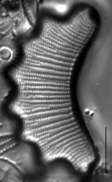 Eunotia diadema LM6