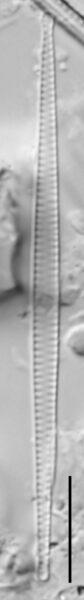 F Tenera 114970 5 10 Um Bar