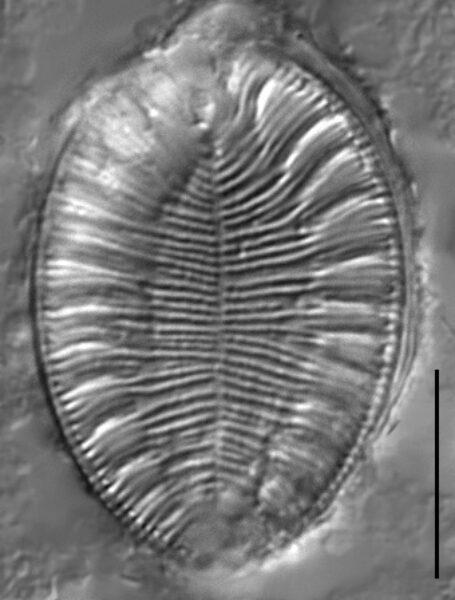 Surirella iowensis LM4