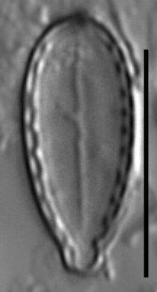 Surirella stalagma LM1