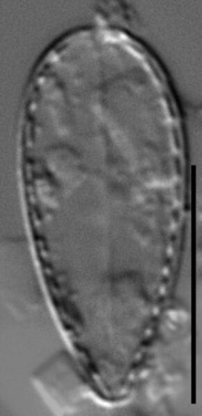 Surirella stalagma LM2
