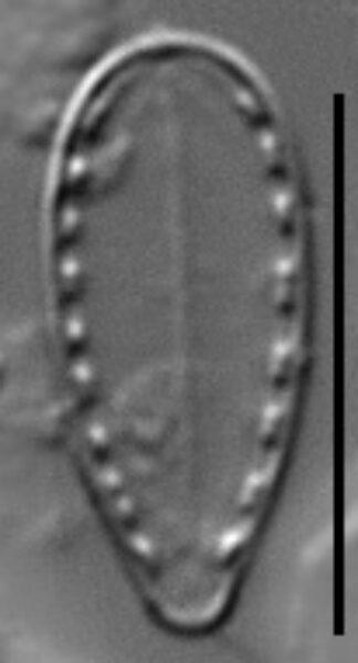 Surirella stalagma LM3