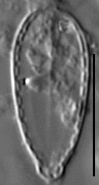 Surirella stalagma LM4