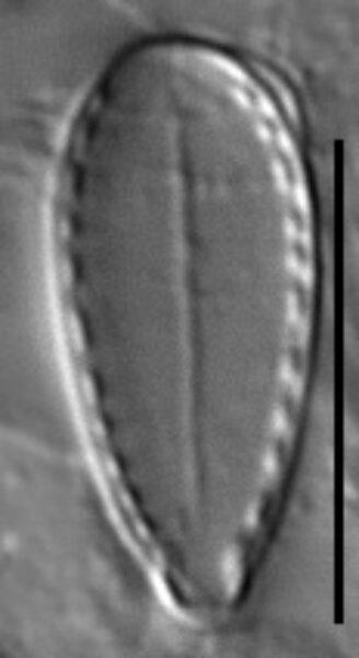 Surirella stalagma LM5