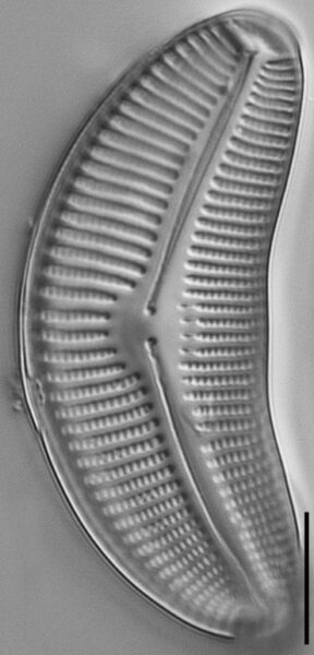Cymbella proxima fo. gravida LM3