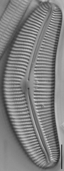 Cymbella proxima fo. gravida LM4